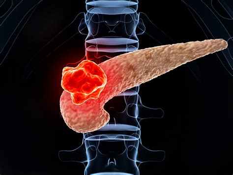 Higher-Dose Radiotherapy Ups Survival in Pancreatic Cancer